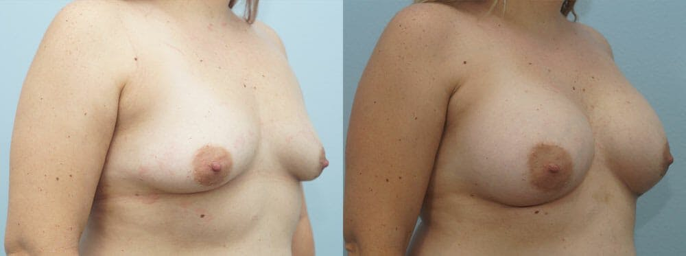 Breast Augmentation Gallery - Patient 48814139 - Image 4