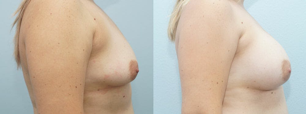 Breast Augmentation Gallery - Patient 48814139 - Image 5