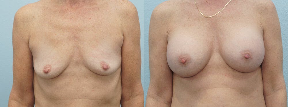 Breast Augmentation Gallery - Patient 48814141 - Image 1