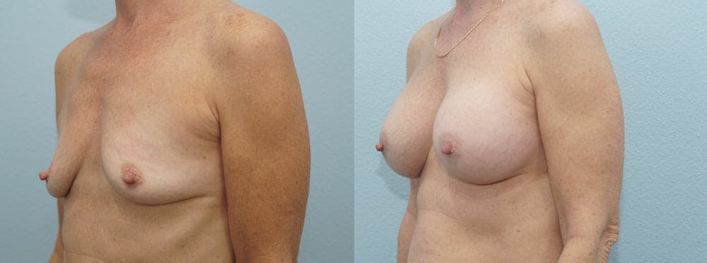 Breast Augmentation Gallery - Patient 48814141 - Image 2