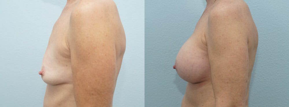Breast Augmentation Gallery - Patient 48814141 - Image 3