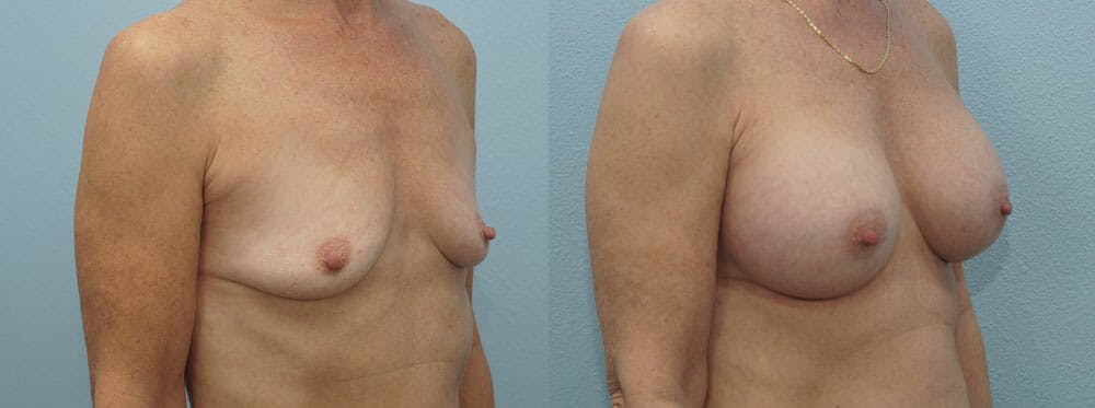 Breast Augmentation Gallery - Patient 48814141 - Image 4