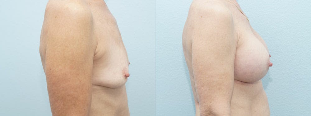 Breast Augmentation Gallery - Patient 48814141 - Image 5