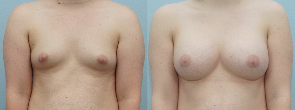 Breast Augmentation Gallery - Patient 48814147 - Image 1