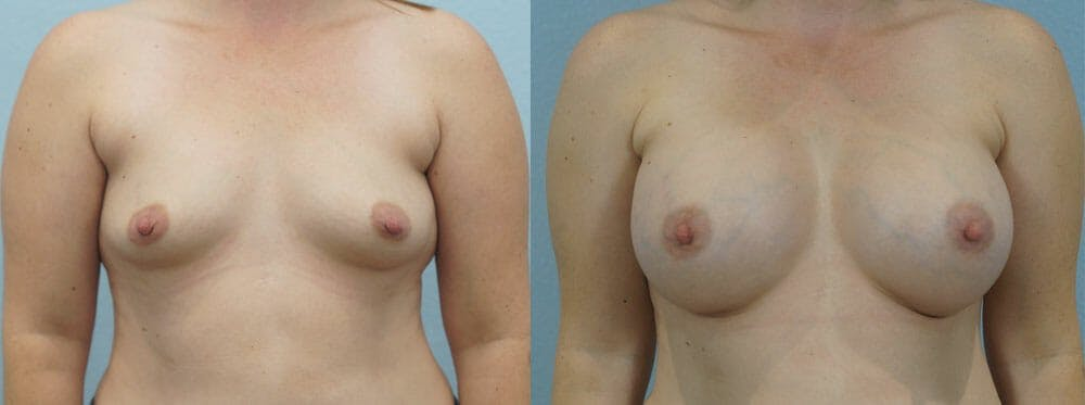 Breast Augmentation Gallery - Patient 48814150 - Image 1