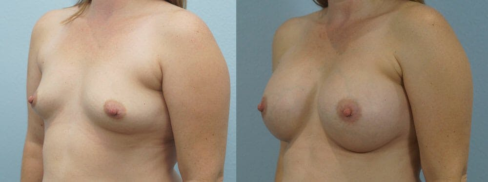 Breast Augmentation Gallery - Patient 48814150 - Image 2