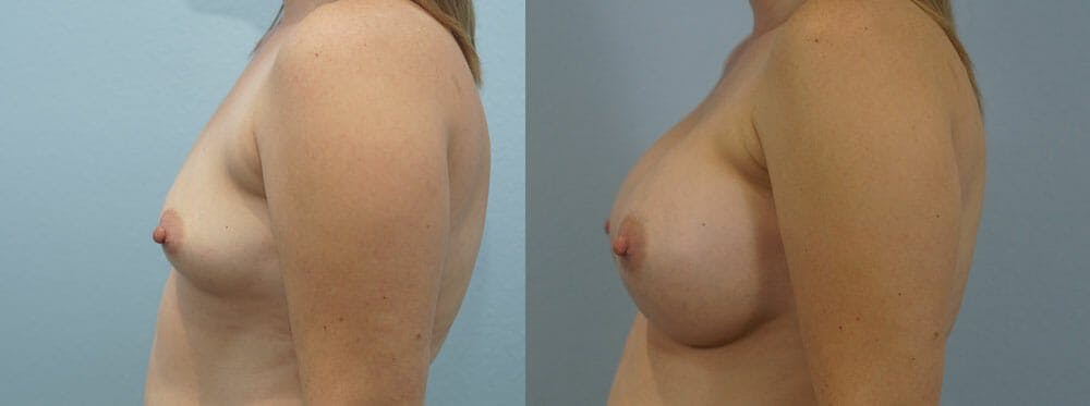 Breast Augmentation Gallery - Patient 48814150 - Image 3