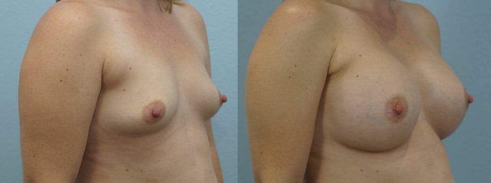 Breast Augmentation Gallery - Patient 48814150 - Image 4
