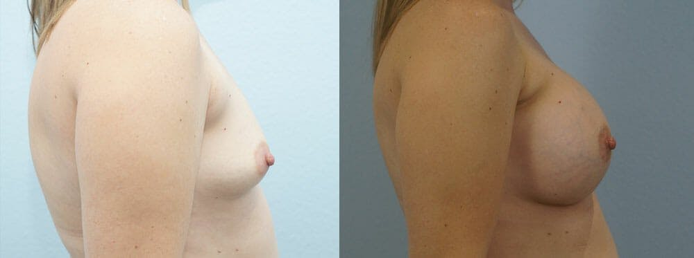 Breast Augmentation Gallery - Patient 48814150 - Image 5