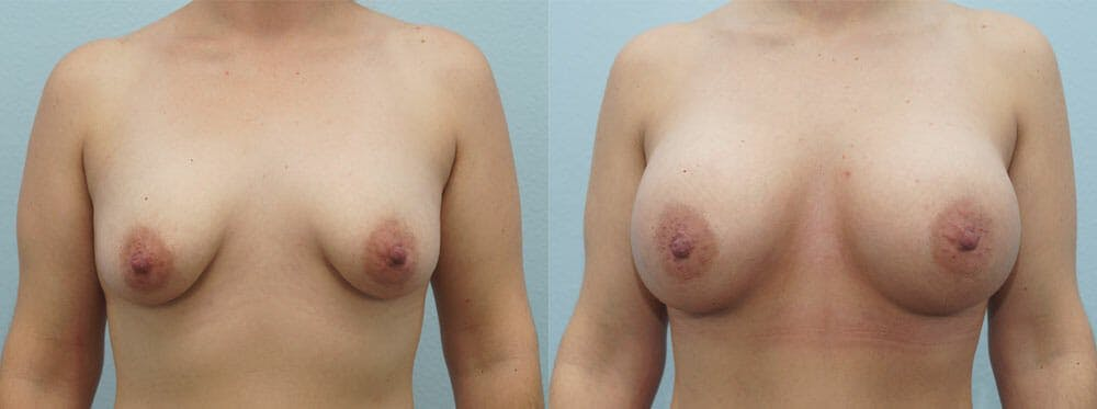 Breast Augmentation Gallery - Patient 48814151 - Image 1