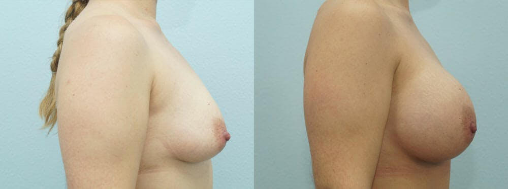 Breast Augmentation Gallery - Patient 48814151 - Image 2
