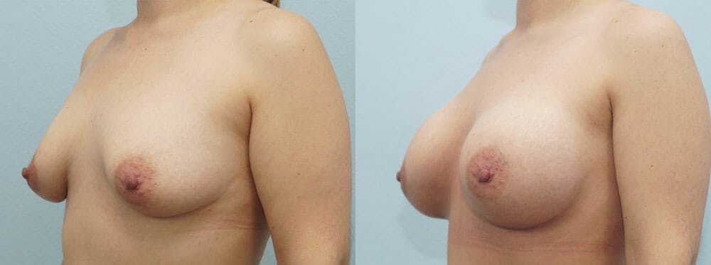 Breast Augmentation Gallery - Patient 48814151 - Image 4