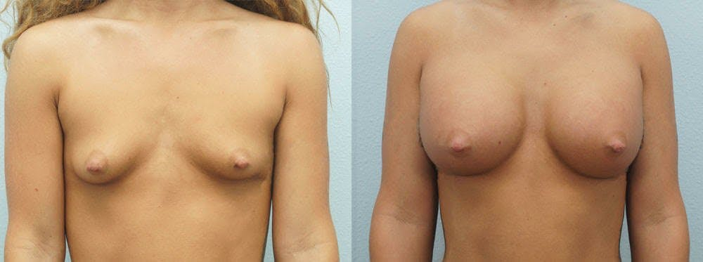 Breast Augmentation Gallery - Patient 48814154 - Image 1