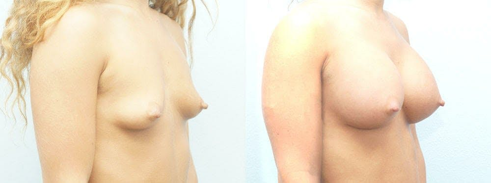 Breast Augmentation Gallery - Patient 48814154 - Image 4