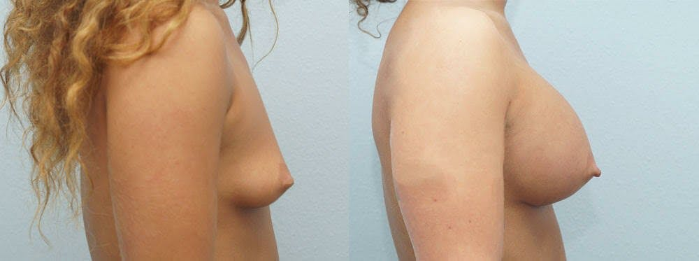 Breast Augmentation Gallery - Patient 48814154 - Image 5