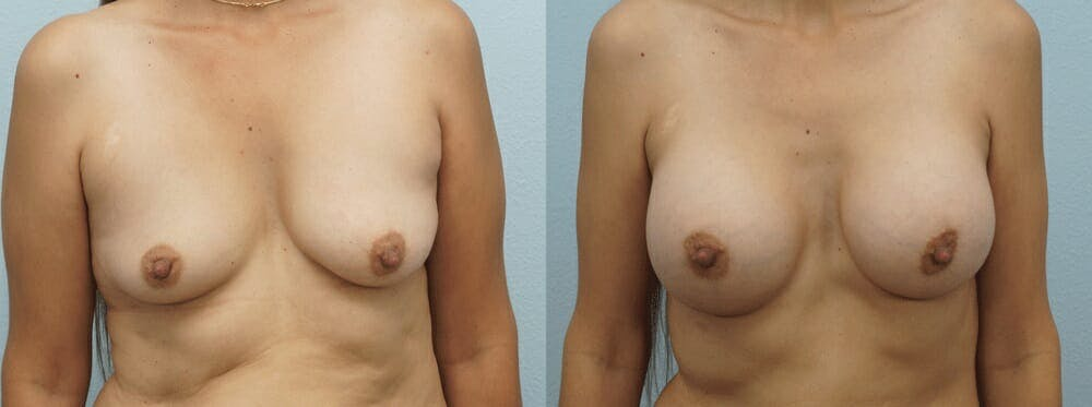 Breast Augmentation Gallery - Patient 48814155 - Image 1