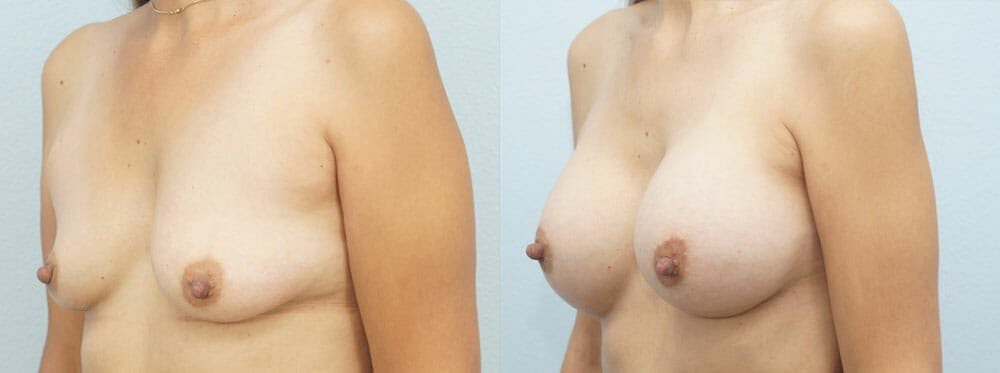 Breast Augmentation Gallery - Patient 48814155 - Image 2
