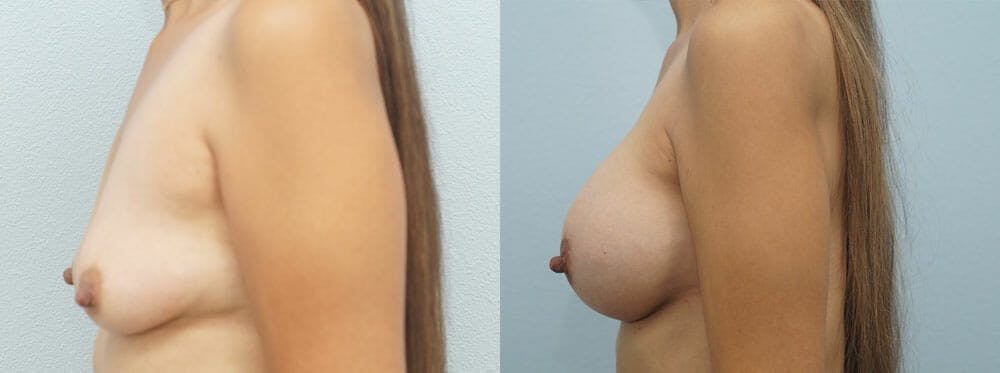 Breast Augmentation Gallery - Patient 48814155 - Image 3