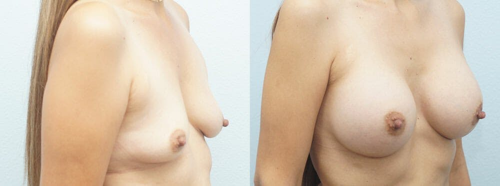 Breast Augmentation Gallery - Patient 48814155 - Image 4