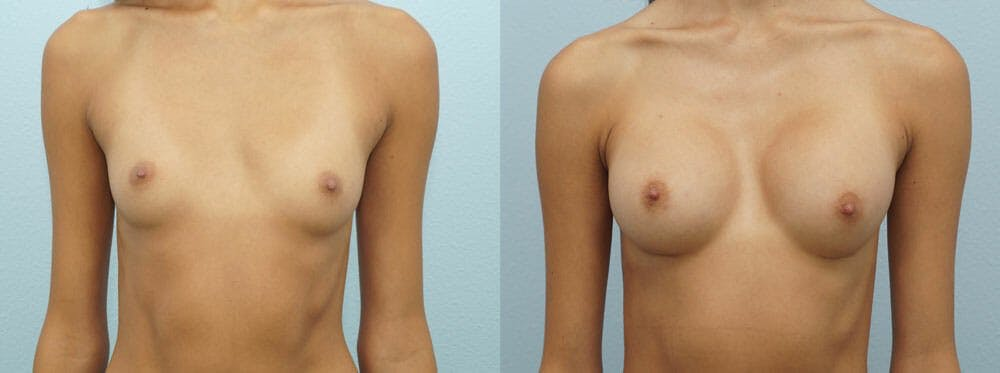 Breast Augmentation Gallery - Patient 48814157 - Image 1