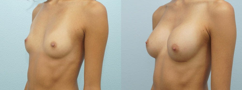 Breast Augmentation Gallery - Patient 48814157 - Image 2