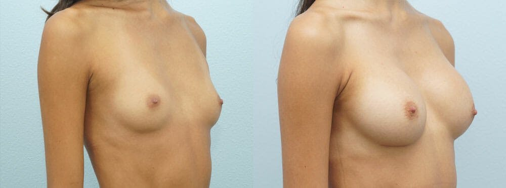 Breast Augmentation Gallery - Patient 48814157 - Image 4