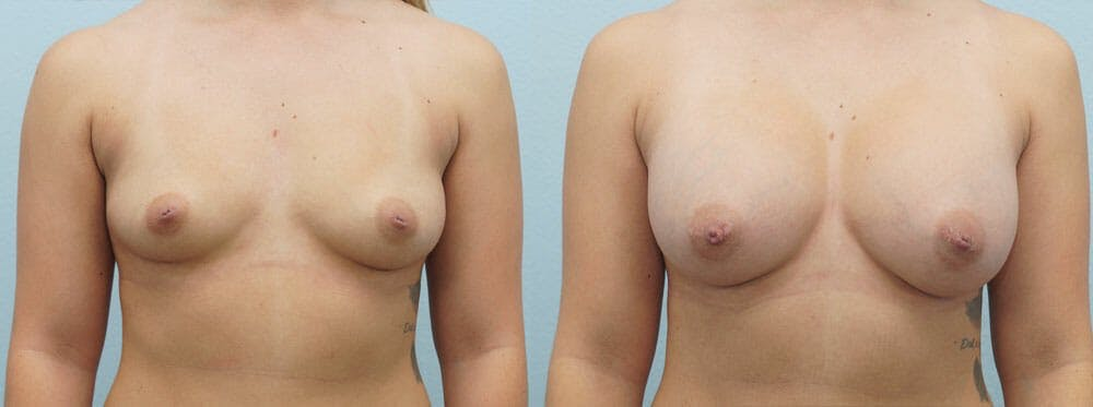 Breast Augmentation Gallery - Patient 48821278 - Image 1