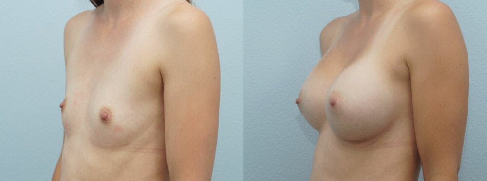 Breast Augmentation Gallery - Patient 48821283 - Image 4