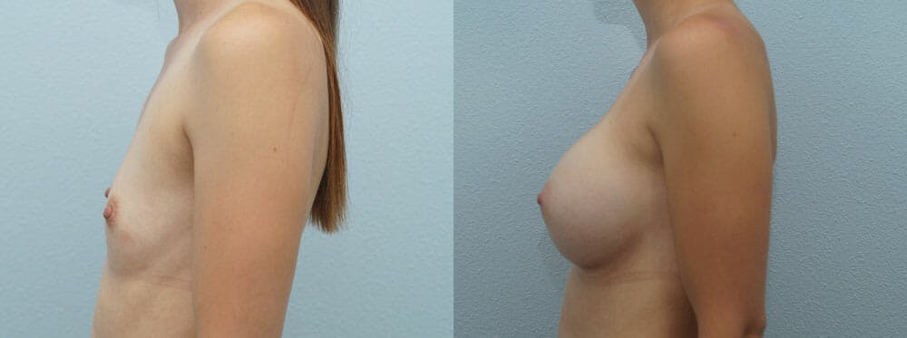 Breast Augmentation Gallery - Patient 48821283 - Image 5
