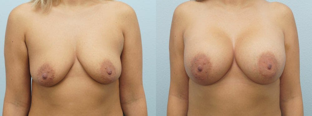 Breast Augmentation Gallery - Patient 48821288 - Image 1