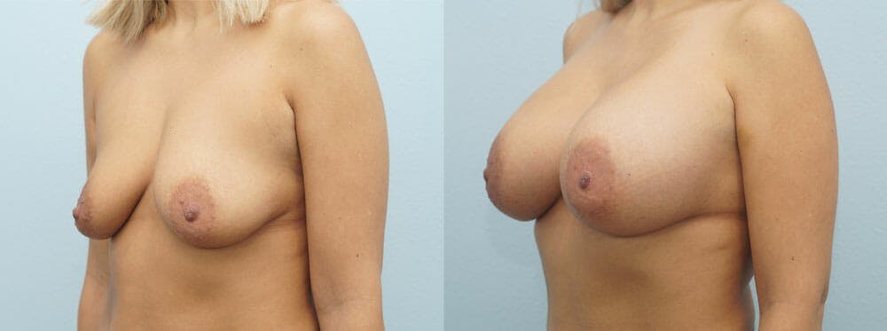 Breast Augmentation Gallery - Patient 48821288 - Image 2