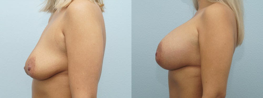 Breast Augmentation Gallery - Patient 48821288 - Image 3