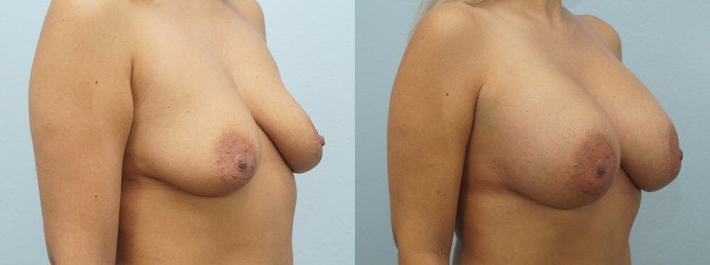 Breast Augmentation Gallery - Patient 48821288 - Image 4
