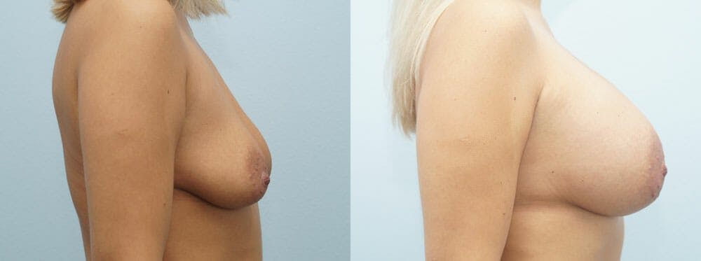 Breast Augmentation Gallery - Patient 48821288 - Image 5