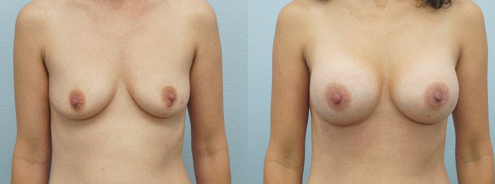 Breast Augmentation Gallery - Patient 48821290 - Image 1