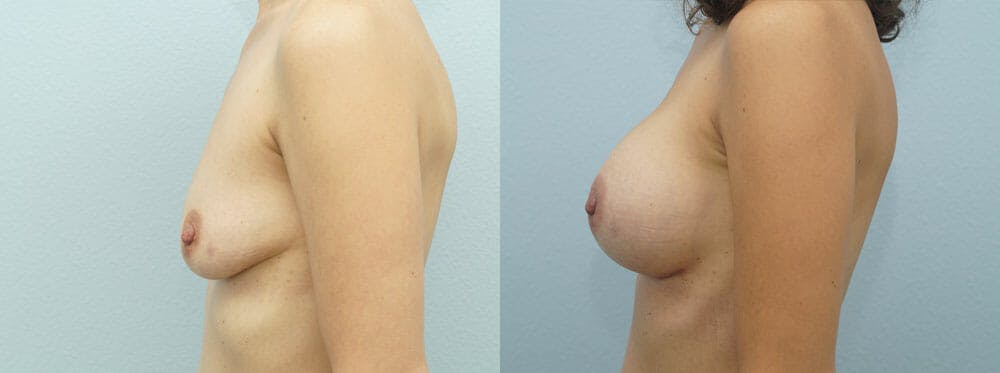 Breast Augmentation Gallery - Patient 48821290 - Image 2