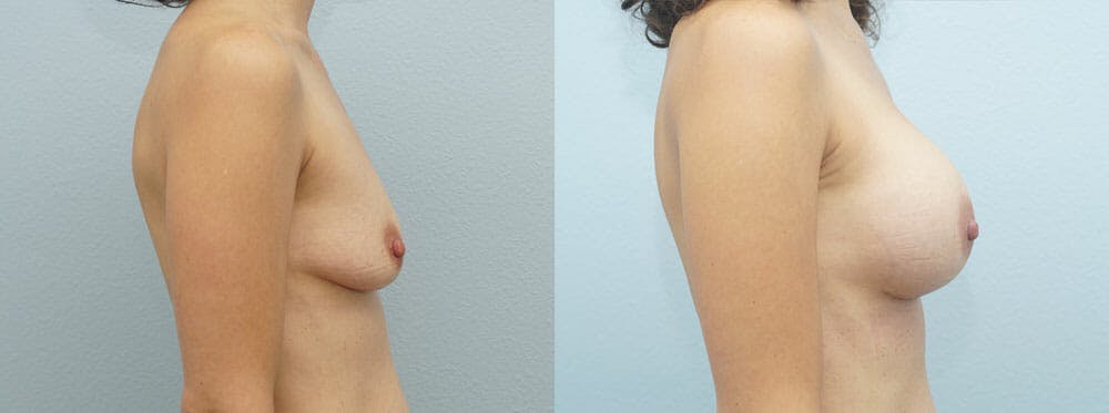 Breast Augmentation Gallery - Patient 48821290 - Image 3