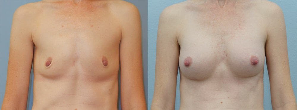 Breast Augmentation Gallery - Patient 48821293 - Image 1