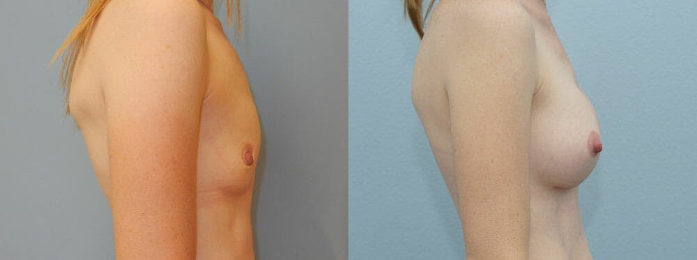 Breast Augmentation Gallery - Patient 48821293 - Image 3
