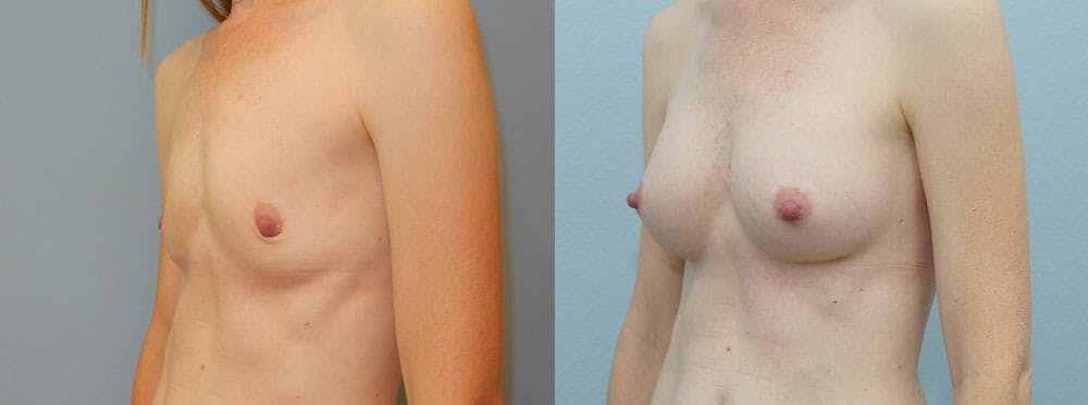 Breast Augmentation Gallery - Patient 48821293 - Image 5