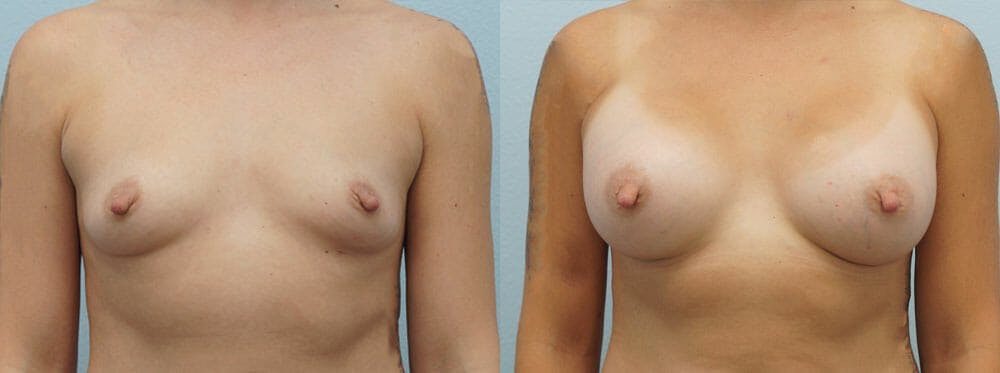 Breast Augmentation Gallery - Patient 48821298 - Image 1
