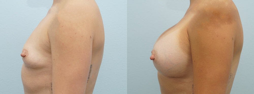 Breast Augmentation Gallery - Patient 48821298 - Image 2