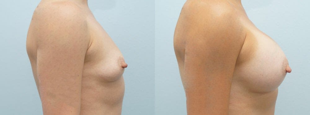 Breast Augmentation Gallery - Patient 48821298 - Image 3