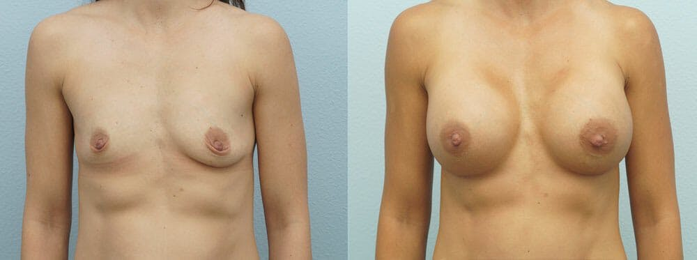 Breast Augmentation Gallery - Patient 48821300 - Image 1