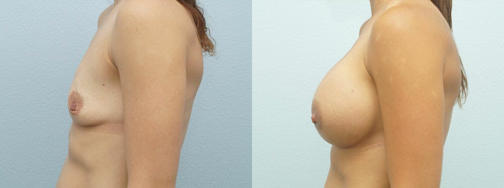 Breast Augmentation Gallery - Patient 48821300 - Image 2