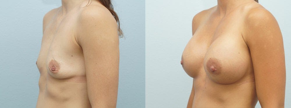 Breast Augmentation Gallery - Patient 48821300 - Image 3