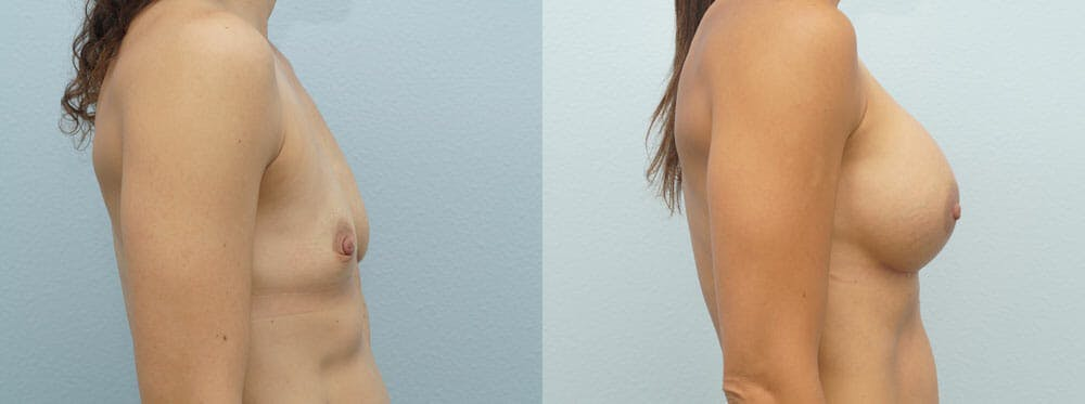 Breast Augmentation Gallery - Patient 48821300 - Image 4
