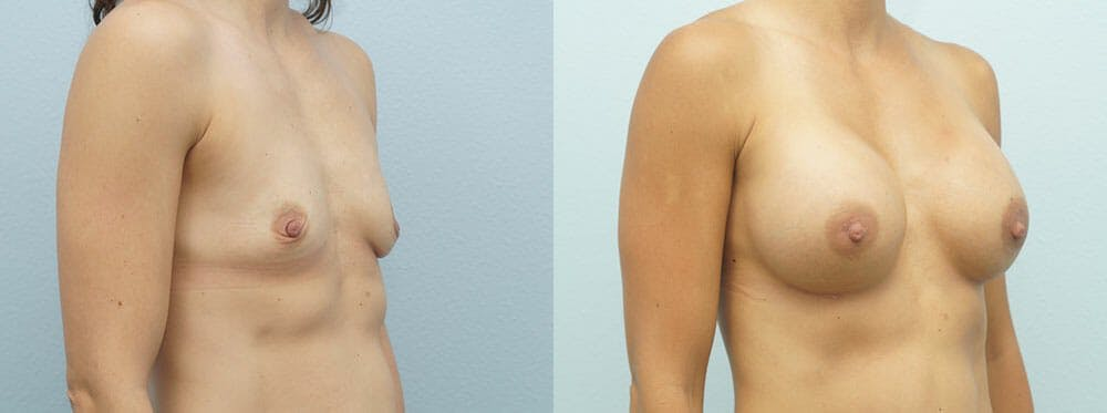 Breast Augmentation Gallery - Patient 48821300 - Image 5