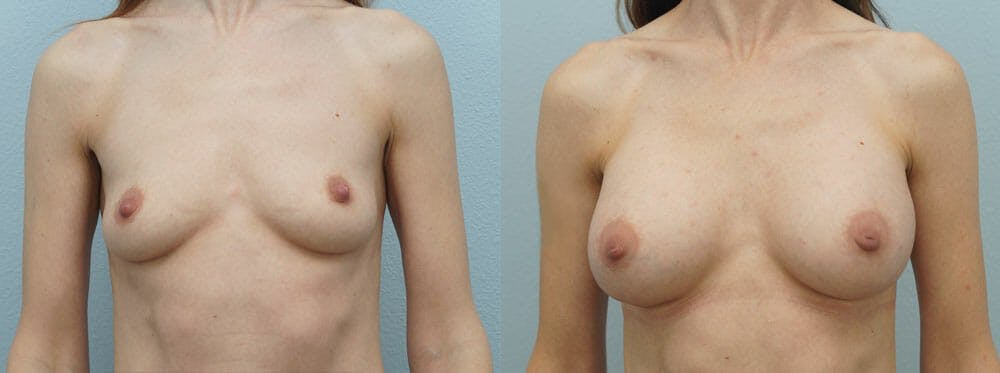 Breast Augmentation Gallery - Patient 48821303 - Image 1