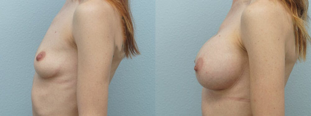 Breast Augmentation Gallery - Patient 48821303 - Image 2